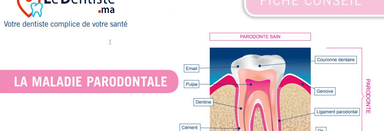 la-maladie-parodontale